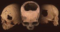 Antik Peru Cerrahlarının Şaşırtıcı Becerisi